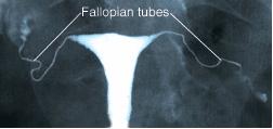 Hysterosalpingogram image